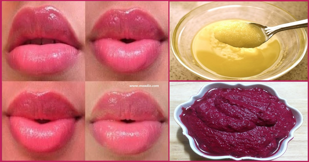 Ways To Get Pink Lips Naturally