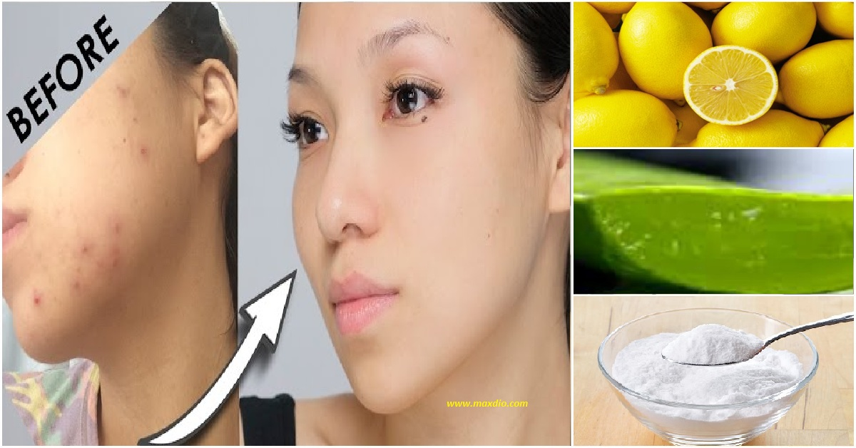 Remove Acne Marks From Face Naturally