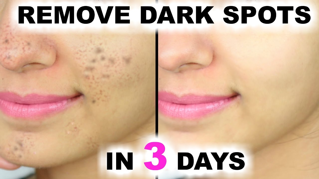 How To Remove Dark Patches And Spots From Your Face Maxdio