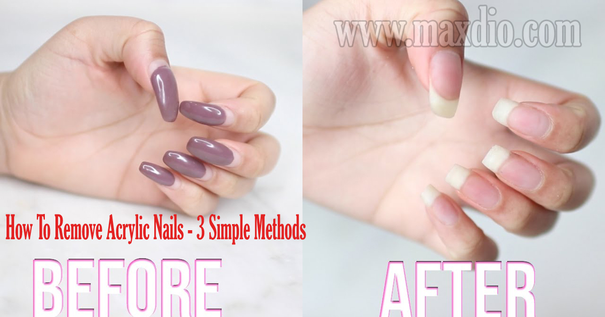 How To Remove Acrylic Nails - 3 Simple Methods You Should Know